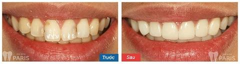 Răng sứ loại nào tốt nhất - Cảm nhận từ chị Mai Anh 1