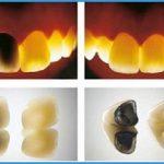 Răng sứ titan giá bao nhiêu – Ưu đãi hấp dẫn 2018