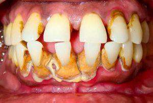 Cao răng – Nguyên nhân và những cách điều trị triệt để
