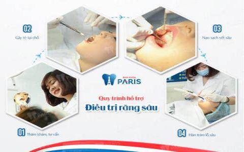 Quy trình trám răng cửa mẻ, răng sâu,.. với công nghệ Laser Tech tại Nha khoa Paris 2