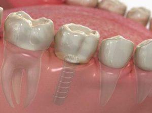 Kỹ thuật trồng răng cấm giả bị mất có ảnh hưởng gì không?