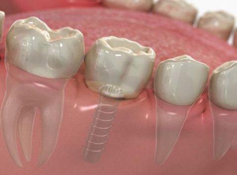 Kỹ thuật trồng răng cấm giả bị mất có ảnh hưởng gì không? 2