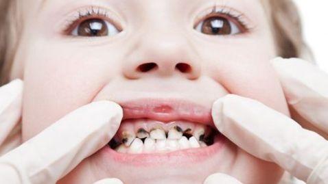Khi xiết ăn răng ở trẻ em ba mẹ nên làm gì cho bé? 1