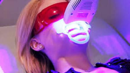 Tẩy trắng răng bằng đèn Plasma có hiệu quả không? 1