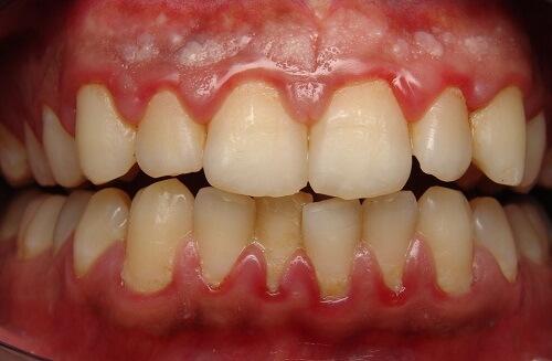 Những dấu hiệu viêm nướu răng bạn nên biết 1