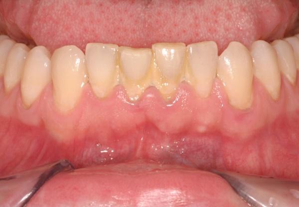 Lấy cao răng có ảnh hưởng gì không 2