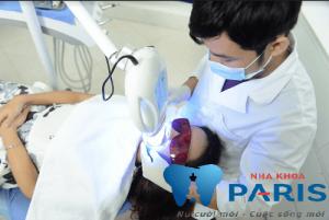 cao răng có tác hại gì 2