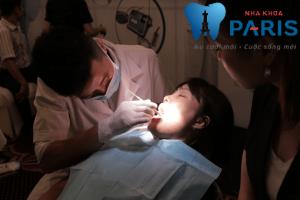 chữa sâu răng bằng cà độc dược 5