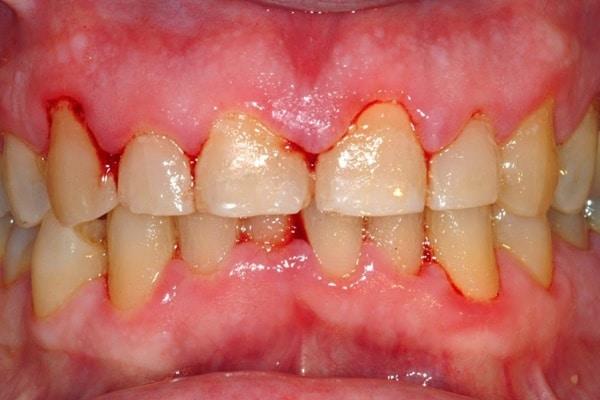 Cao răng có phải nguyên nhân gây bệnh chảy máu răng không ?