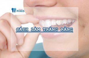 tẩy trắng răng tại nhà 1