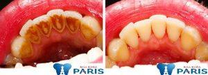 Cạo vôi răng có làm trắng răng không? [BS tư vấn]