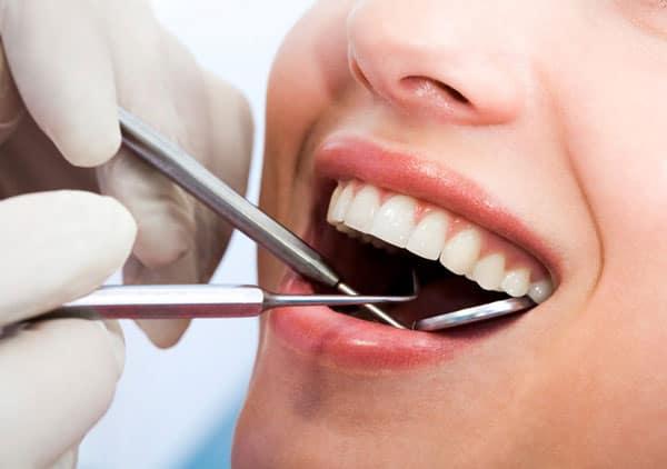 Vì sao phải lấy cao răng định kỳ 2