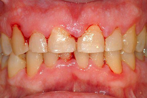 Chảy máu chân răng nguyên nhân do viêm nha chu ?