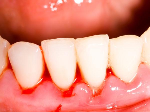 Chảy máu chân răng, nguyên nhân và cách điều trị hiệu quả