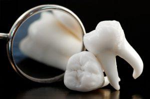 Có nên nhổ răng khôn không? - Chuyên gia nha khoa giải đáp 1