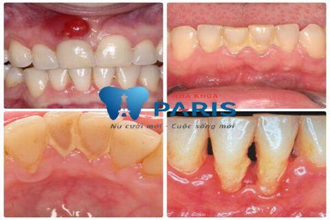 Lấy cao răng có ảnh hưởng gì không 1
