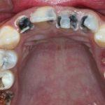 Hướng dẫn cách chữa bệnh đau răng do sâu răng tại nhà