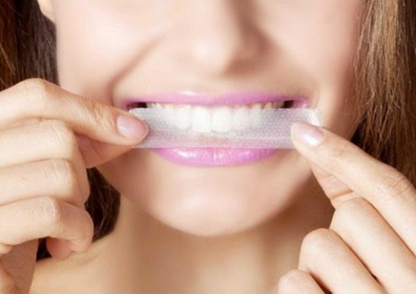 Giải đáp thắc mắc: Miếng dán trắng răng có tốt không?