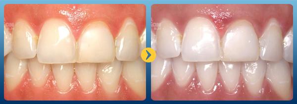 Giải đáp thắc mắc Miếng dán trắng răng có tốt không