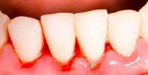 răng sứ bị chảy máu