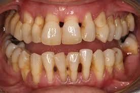 Cạo vôi răng bao lâu 1 lần là thích hợp và không gây hại cho răng? 1
