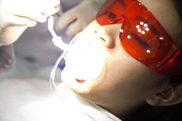 Tẩy trắng răng bằng đèn plasma có hại không có ảnh hưởng gì không?