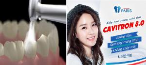 Cạo vôi răng bao lâu 1 lần là thích hợp và không gây hại cho răng? 2