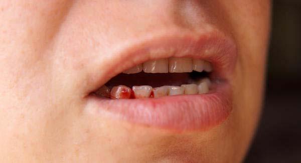 Nguyên nhân chảy máu chân răng và cách điều trị hiệu quả