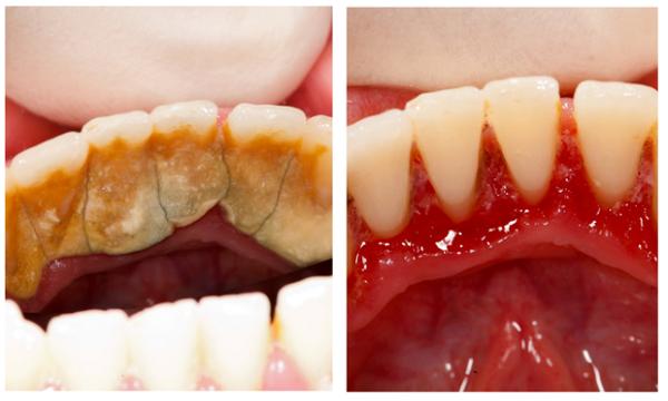 Giải đáp: Lấy cao răng là gì, lấy cao răng có tốt không?