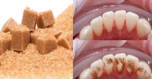 Mảng bám trên răng là gì và cách điều trị 2