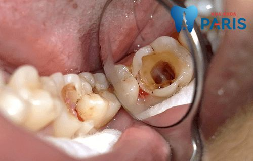 [BS Tư Vấn]-Viêm tủy răng nên uống thuốc gì?