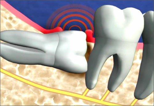 Răng khôn mọc ngang và những điều quan trọng cần lưu ý 3