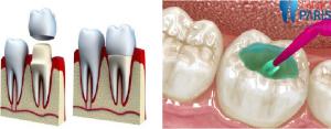 Điều bạn chưa biết về cách chữa sâu răng hiệu quả triệt để nhất 2