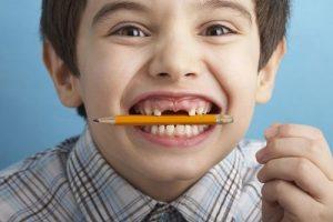Sâu răng ở trẻ 4 tuổi phải điều trị như thế nào là an toàn và hiệu quả? 1