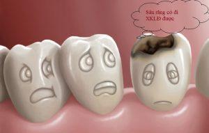 Bạn chưa biết Sâu răng có đi xuất khẩu lao động được không?