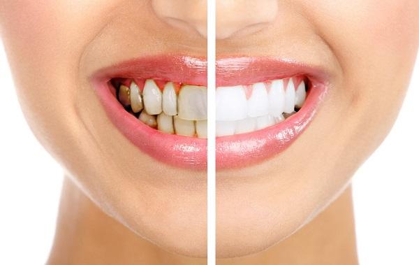 Tẩy trắng răng có hại không ?