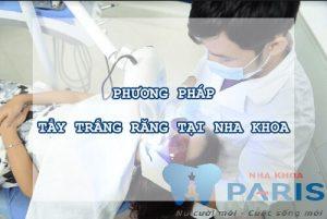 phương pháp tẩy trắng răng 3