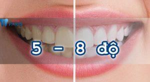 làm trắng răng bằng laser 3
