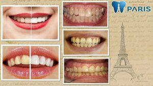 Bạn có biết cách làm trắng răng bị xỉn màu như thế nào là tốt nhất?