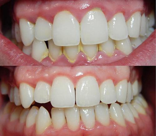 Top 4 lợi ích của cạo vôi răng cho sức khỏe răng miệng 1
