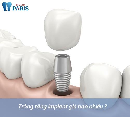 Trồng răng hàm - phương pháp phục hình răng hiệu quả