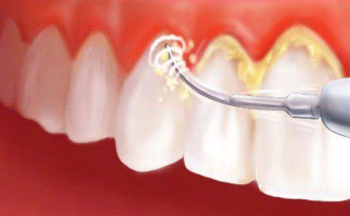 Nguyên nhân dẫn đến bà bầu bị viêm chân răng 2