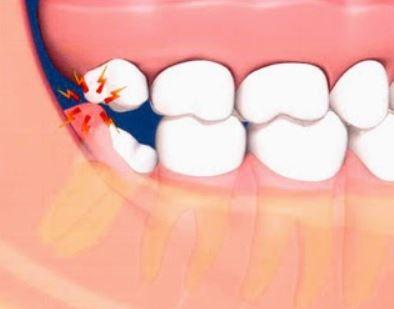 Viêm nướu răng khôn là bị gì? Tổng hợp những bệnh lý gây viêm về răng miệng