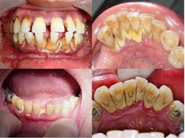 Lấy cao răng có tốt không và những cách lấy cao răng tại nhà