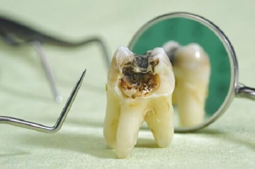 tủy răng bị thối 1