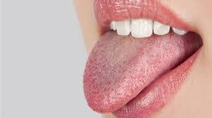 Miệng khô và đắng cùng những tác hại khôn lường 1