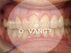 Răng vàng là biểu hiện của bệnh gì và làm thế nào để khắc phục?