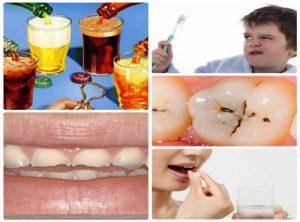 răng vàng là biểu hiện của bệnh gì