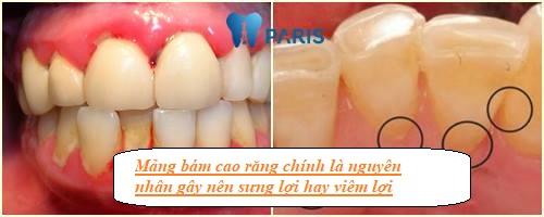 [Chia sẻ]- Viêm lợi và đau họng là dấu hiệu của bệnh gì? Cách khắc phục