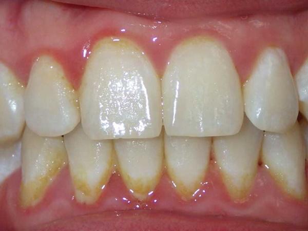 Bí kíp đánh bay mảng bám cứng trên răng chỉ sau 5 phút